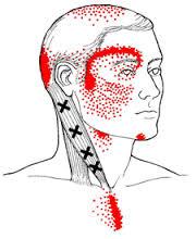 emicrania e trigger point