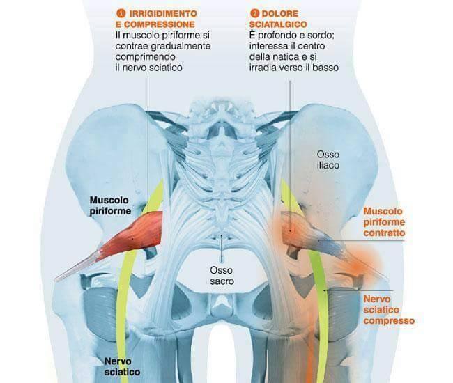 schema piriforme